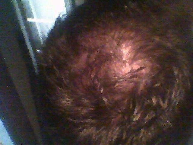 wypadanie włosów sfd